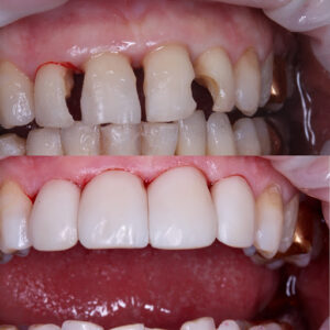 What problems does cosmetic restoration solve?